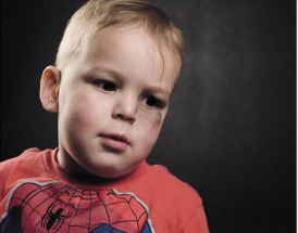 A photo of a young boy with a bruise on his face