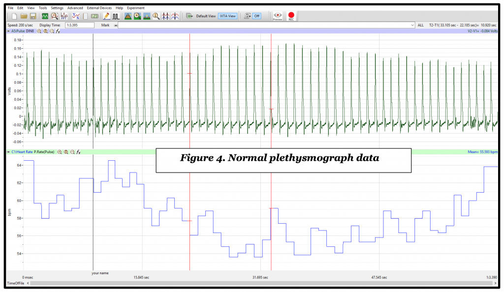Plethysmograph data in LabScribe