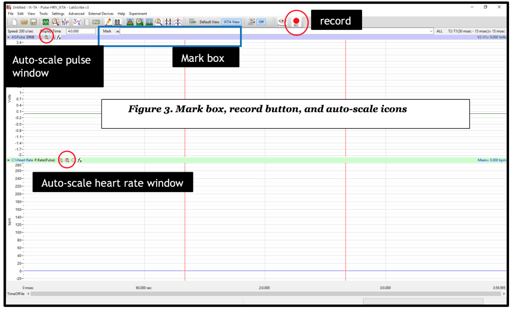 LabScribe labeled with record, auto-scale, and mark box