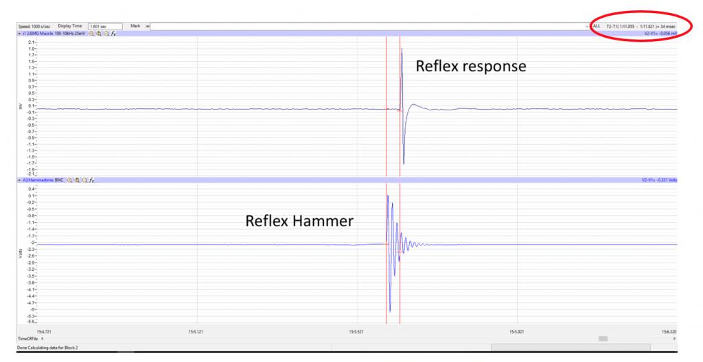 reflex window