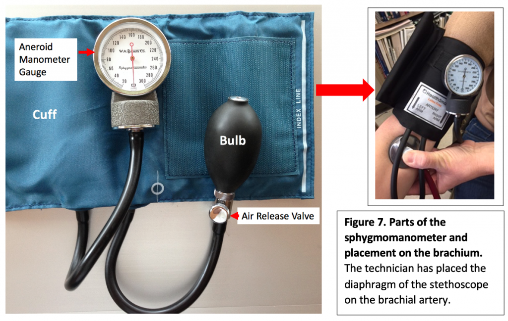 Parts of the sphygmomanometer and its placement on the brachium.