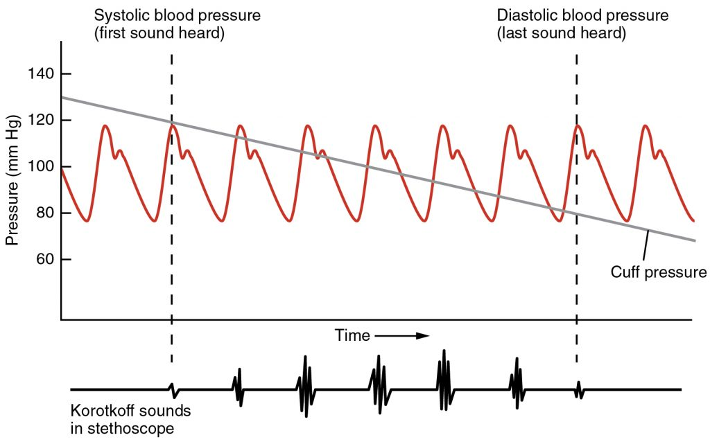 Figure 8. Blood pressure measurement. When the pressure of the cuff is released, the clinician can hear the first sound of Korotkoff as blood begins to flow through the brachial artery again. This is the systolic pressure. When the last sound of turbulent blow flow is heard, the pressure is recorded as diastolic.