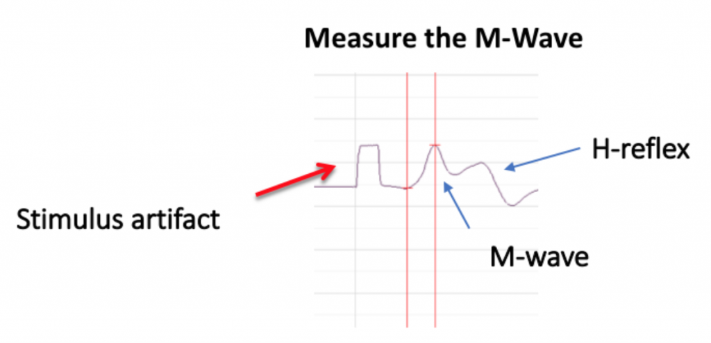 A stimulus artifact, M-wave, and H-wave are labeled.
