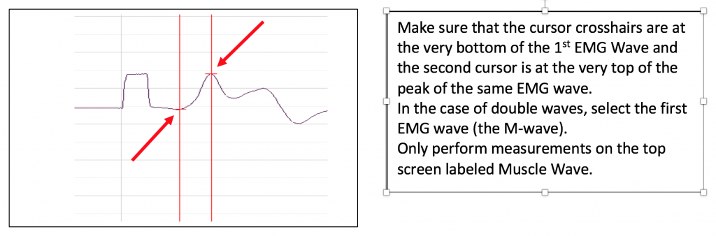 Make sure the cursor crosshairs are at the very bottom of the 1st EMG Wave and the second cursor is at the very top of the peak of the same EMG wave.