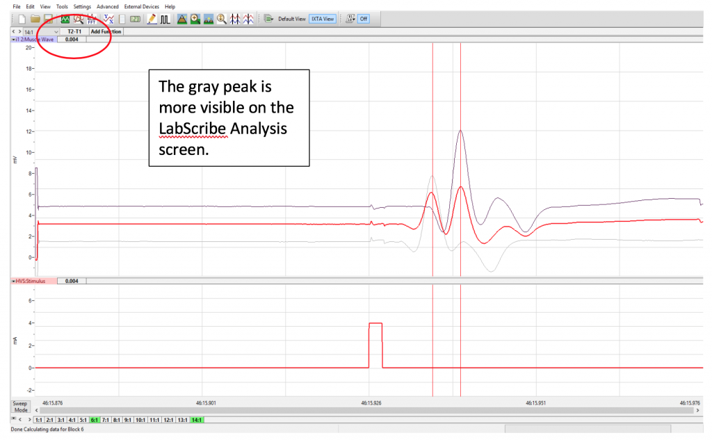 The gray peak is more visible on the LabScribe Analysis screen.