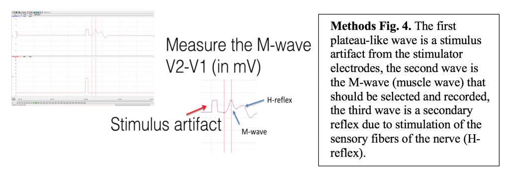 The first plateau-like wave is a stimulus artifact from the electrodes, the second is the M-wave that should be selected and recorded, the third wave is a secondary reflex due to the stimulation of the sensory fibers.