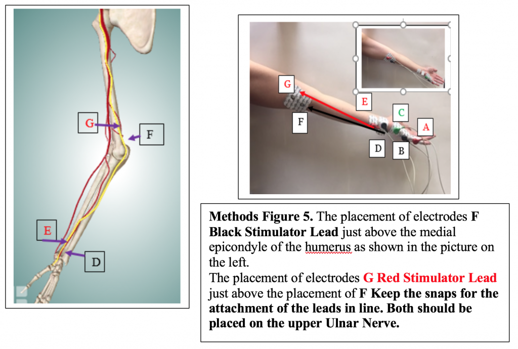 The placement of the electrodes F Black Stimulator Lead just above the medial epicondyle. The placement of electrodes G Red Stimulator Lead just above the placement of F.