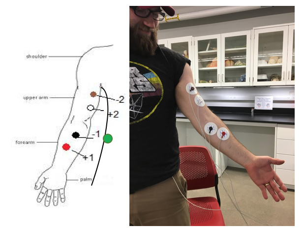 electrodes labeled on the arm