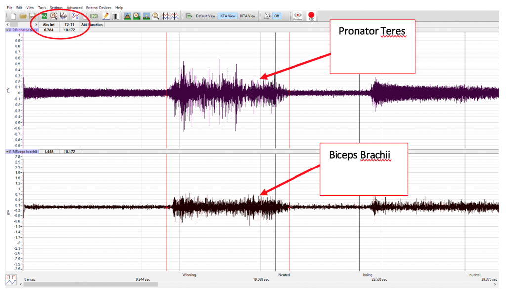 Abs Int for Pronator Teres and Biceps Brachii data