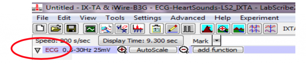 ECG labeled in LabScribe