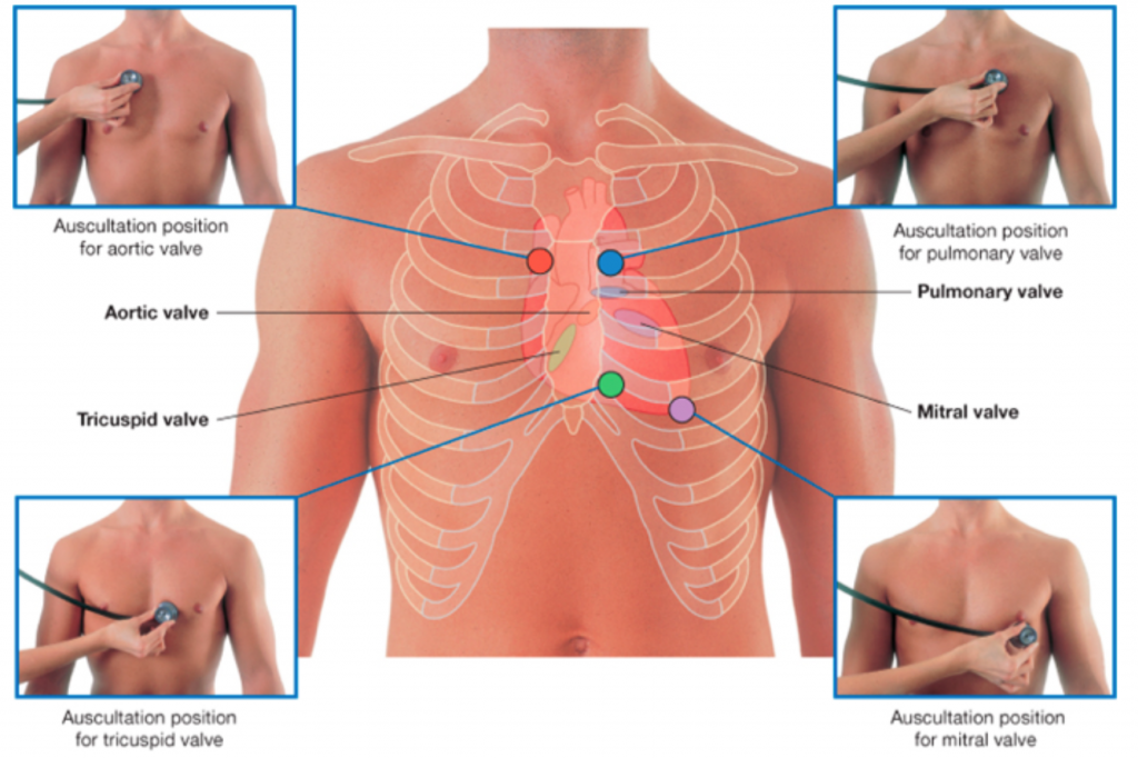 auscultation positions of valves of the heart labeled