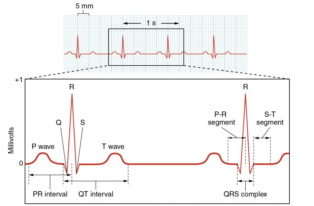 ECG example with intervals labeled.