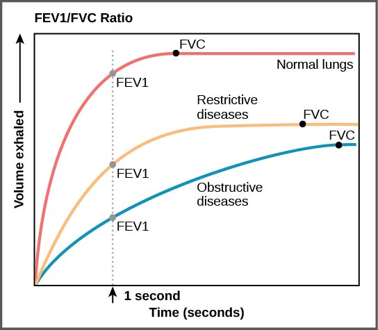 Time (seconds) mapped against volume exhaled based on FEV1/FVC ratio