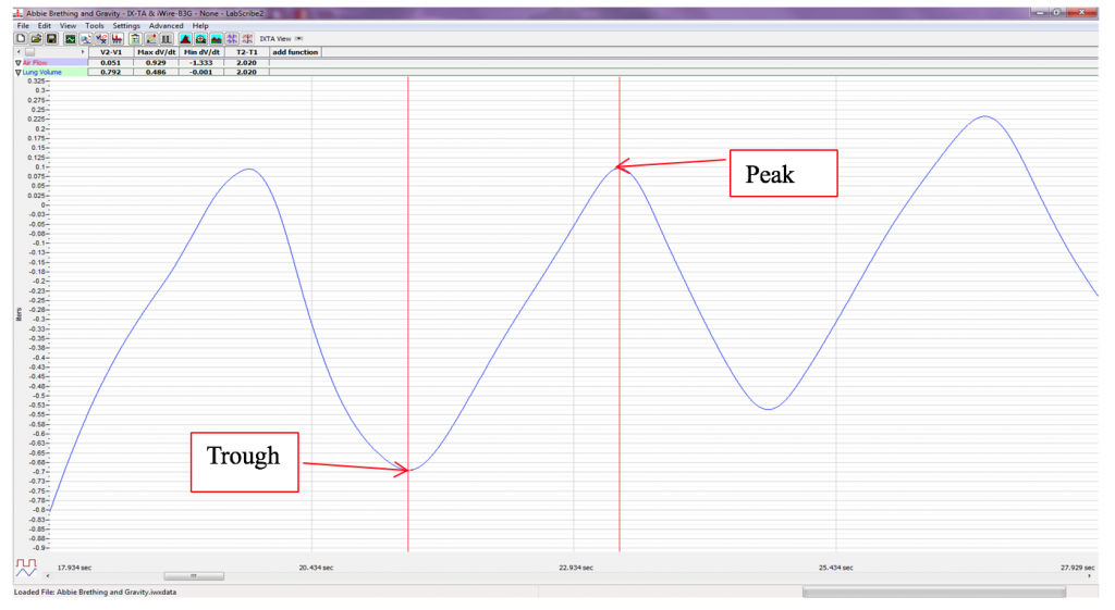 Peak (tip of wave) and trough (low point of wave) are labeled on a breathing pattern
